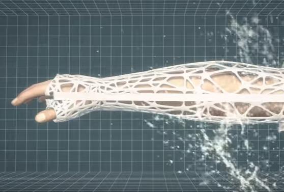 Gesso 3d progettazione e stampa in ortopedia il for Progettazione 3d online